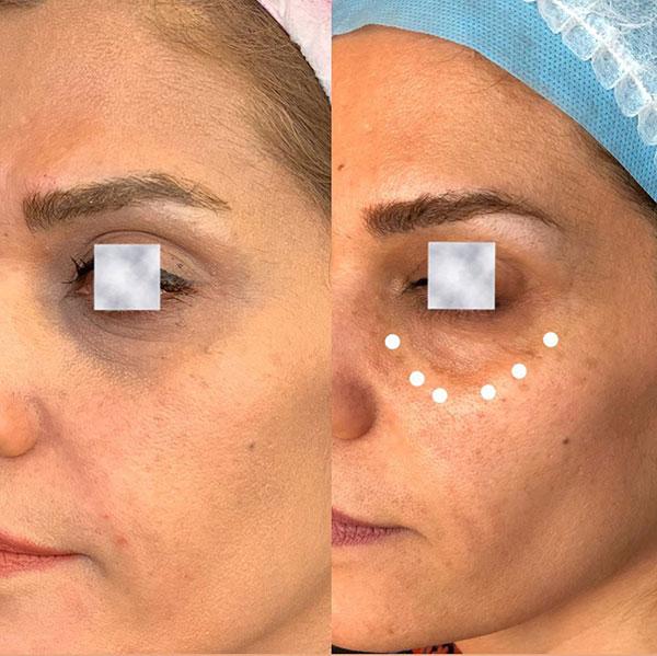 اصلاح گودی و تیرگی زیر چشم
